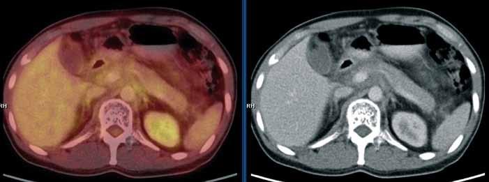 """PET/CT vyšetření s podáním i.v. kontrastu provedené v září 2010. Mediastinem, jaterním hilem a kaudálněji celým retroperitoneálním prostorem se spolu s cévami pruhovitě táhne """"cárovitě"""" hypodenzní (hemagiomatózní) infiltrát, jehož metabolická aktivita je srovnatelná s pozadím. Lze tedy říct, že ani kostní postižení, ani infiltrát v mediastinu, retroperitoneu nevykazoval patologickou míru konzumpce FDG, kterou běžně vídáme u většiny ložisek maligní etiologie."""