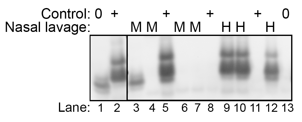 Western blot detection of HY TME infection in nasal lavages using the QuIC assay.