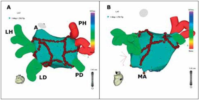 Trojrozměrné mapování a katétrová ablace fibrilace síní.