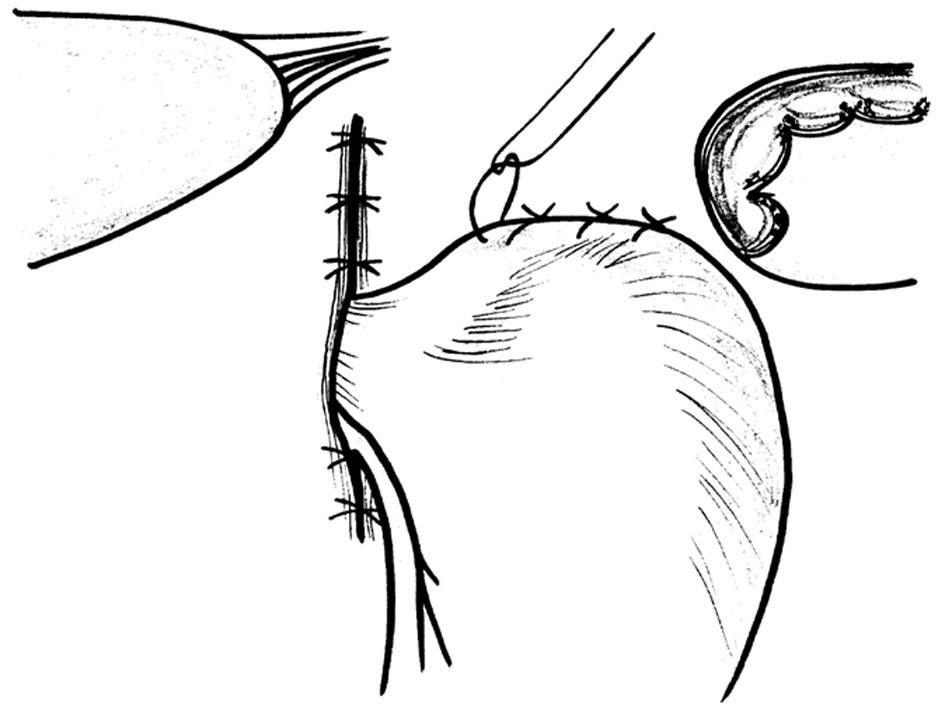 Schéma přední hiátorafie a fundofrenopexe Fig. 16: Scheme of the anterior hiatorhaphy and fundophrenopexy