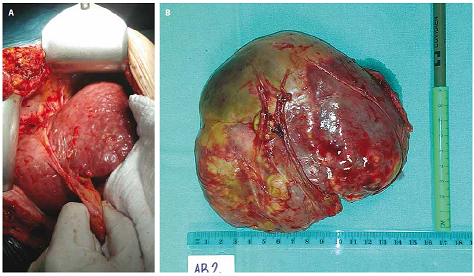 Intraoperative photograph of the hypertrophied left liver lobe (A) and specimen of necrotic right liver lobe after removal (B).