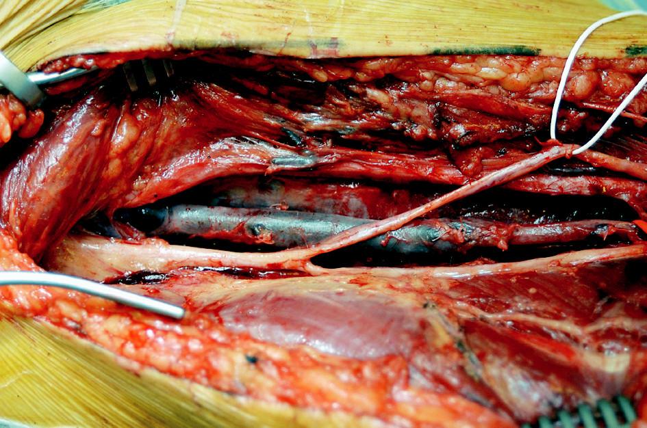 Autologní vena femoralis superficialis Fig. 2. Autologous superficial femoral vein