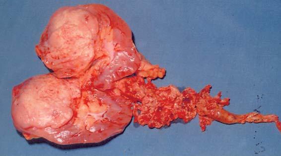 Odstraněná ledvina s nádorem a keříčkovitým trombem (hladina IV, operace v CPB).