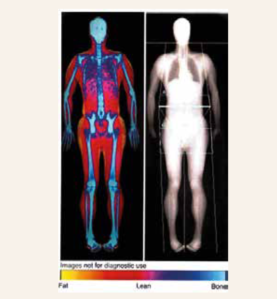 DXA scan of a whole body composition