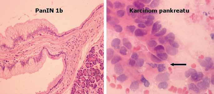 Histologický obraz léze PanIN1b a karcinomu pankreatu.