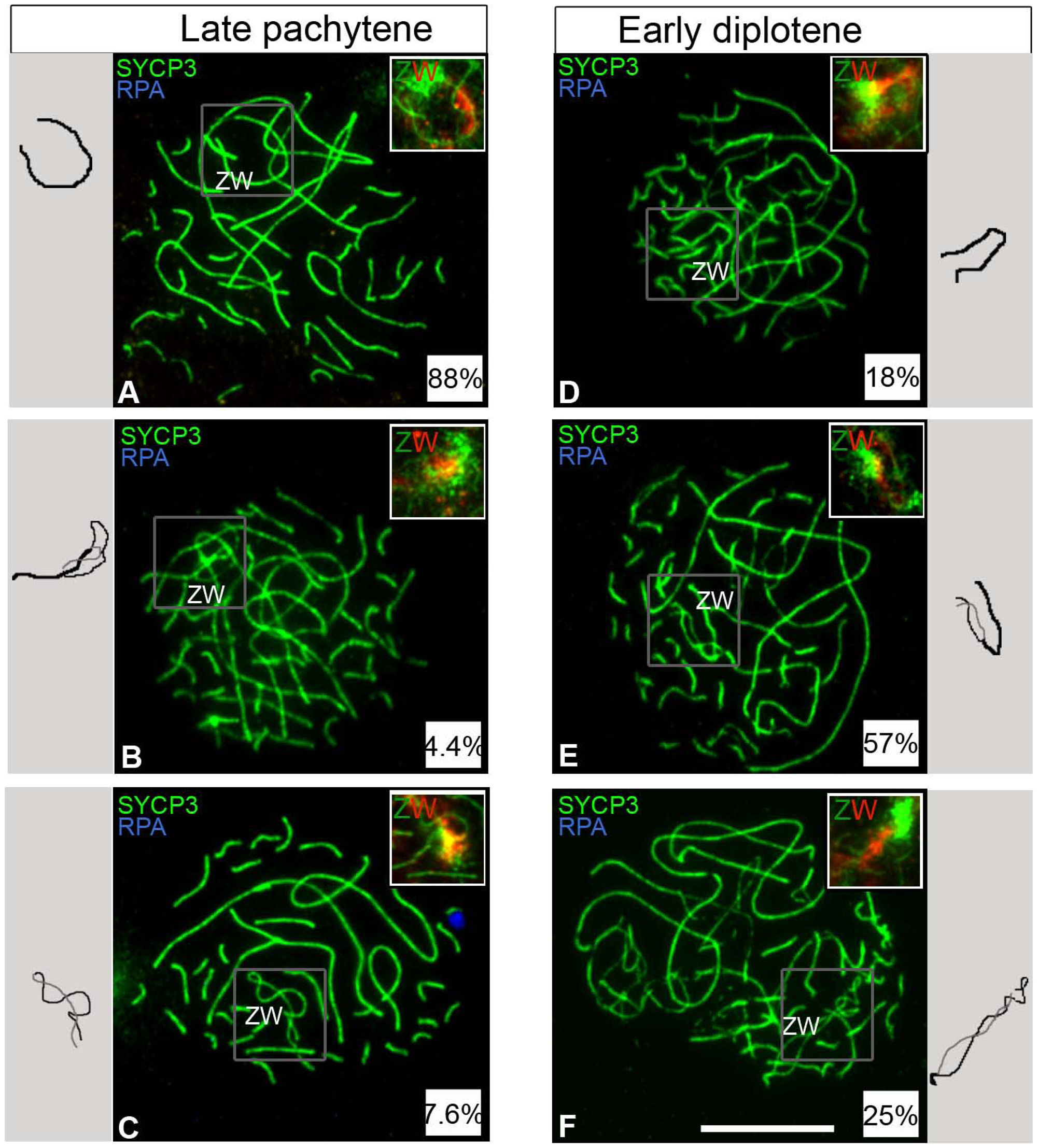 ZW bivalent desynapsis occurs in synchrony with autosomal desynapsis.