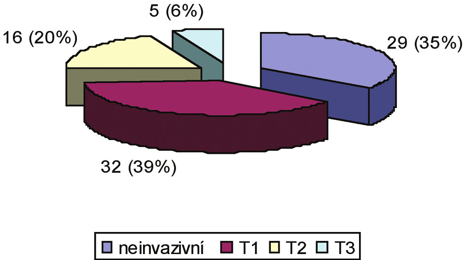 Stadia maligních nádorů rekta indikovaná k TEM na našem pracovišti Graph 1. Stages of malignant tumor of the rectum indicated for TEM at our workplace