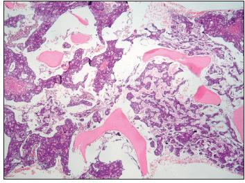 Metastatický adenokarcinom v kostní dřeni. Intertrabekulární prostory byly prostoupeny strukturami karcinomu, okolní stroma bylo jemně fibrotizované a prosáklé, vlastní krvetvorba nebyla v přehledu patrná. Trepanobiopsie, barvení hematoxilinem-eozinem, malé zvětšení.