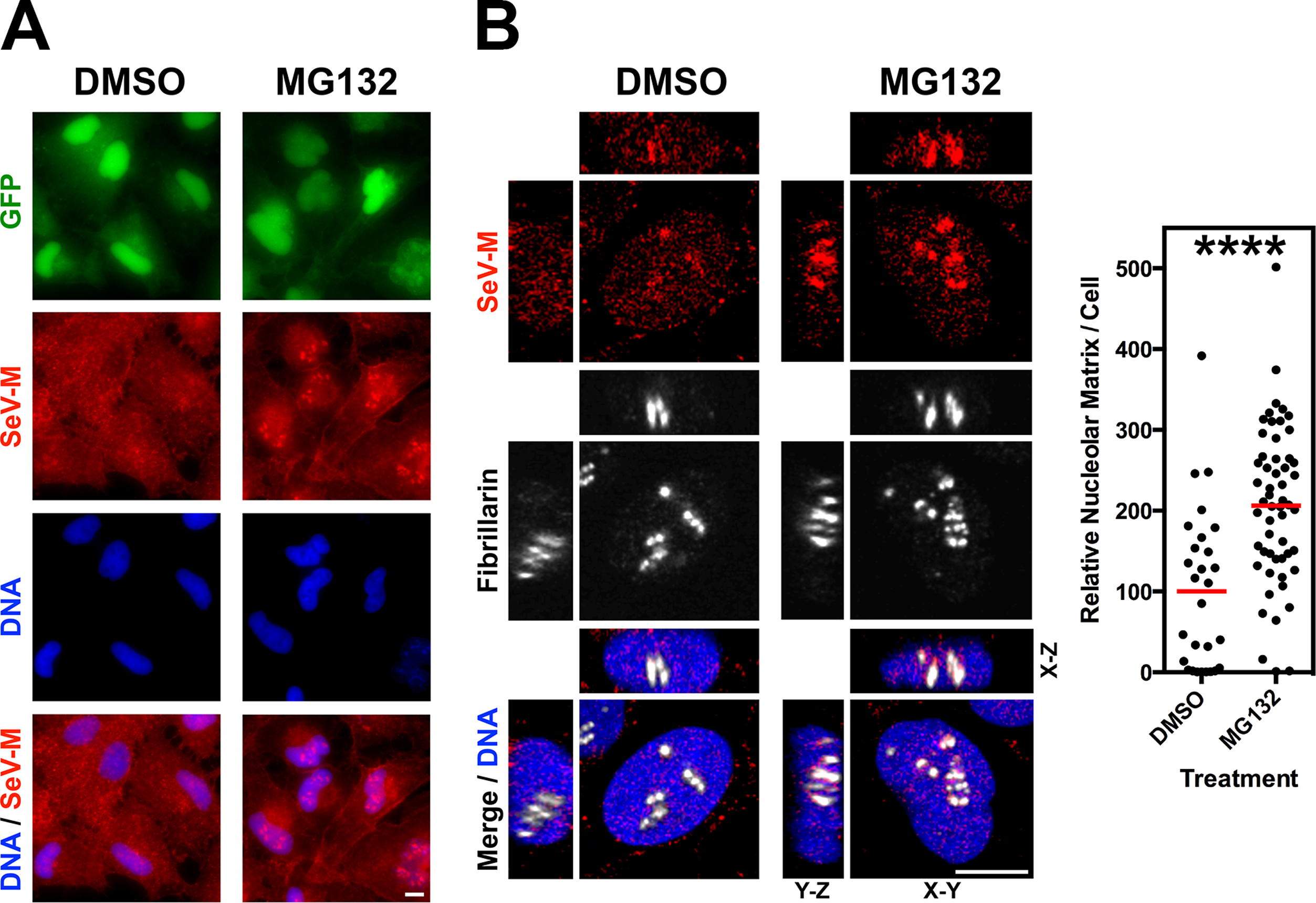 Nucleolar localization of Sendai M during live virus infection and perturbation of ubiquitination.