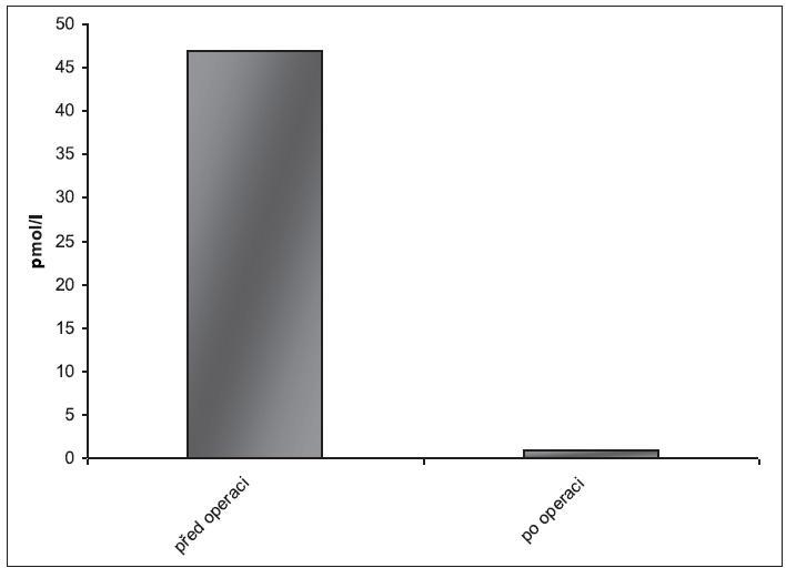 Hladina parathormonu v séru před a po operačním řešení