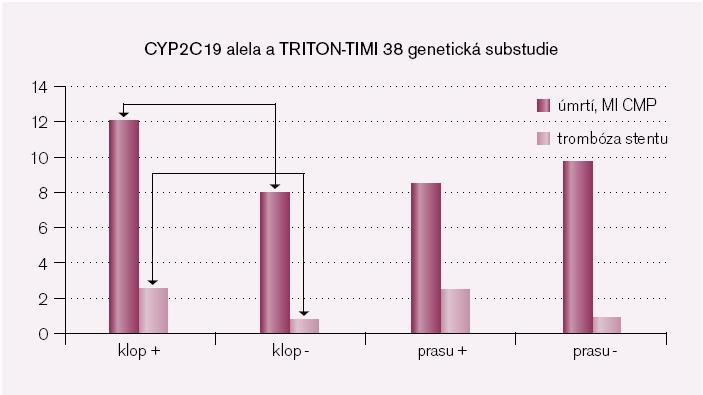 Obr. 2. Četnost ischemických komplikací v procentech u nemocných léčených klopidogrelem nebo prasugrelem s nosičstvím funkční alely 2C19 (klop +, prasu +) nebo s nosičstvím nefunkční alely (klop -, prasu -). Ve skupině léčené klopidogrelem je rozdíl ve výskytu trombóz stentu a ischemických příhod mezi nositely funkcí alely 2C19 a nositely nefunkční formy.