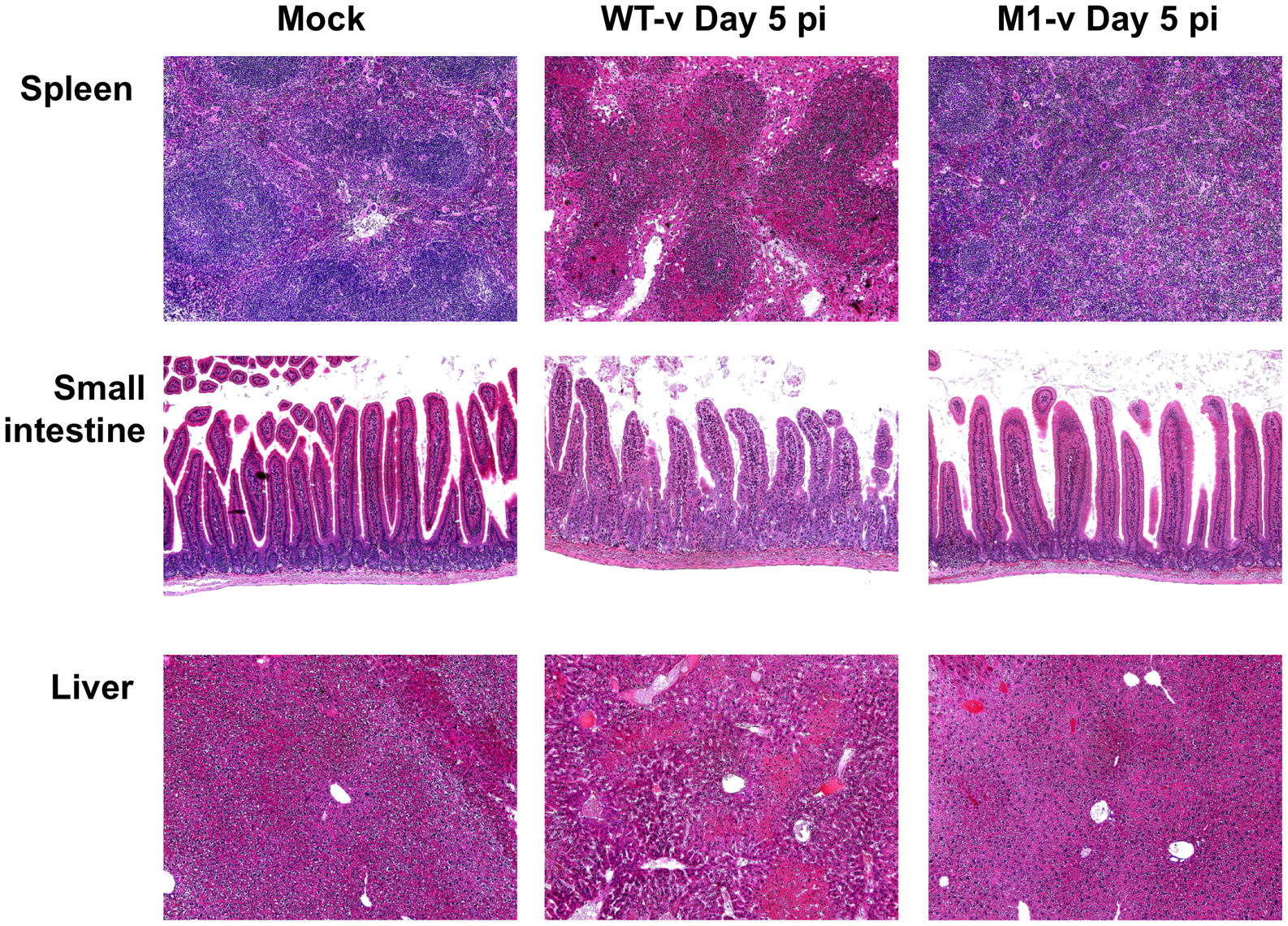 Pathology is markedly reduced in the absence of VF1 expression.