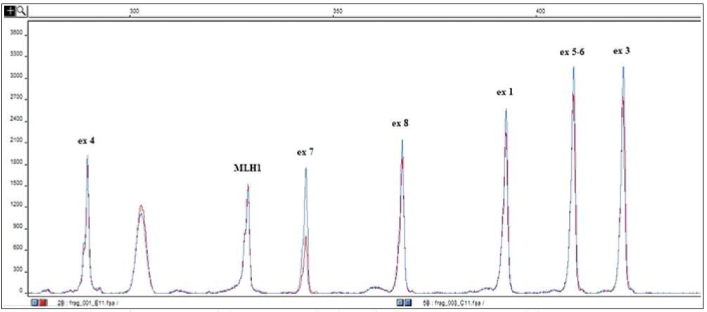 Výsledek molekulárně genetického vyšetření – detekce velké delece v genu pro C1 inhibitor (SERPING1).