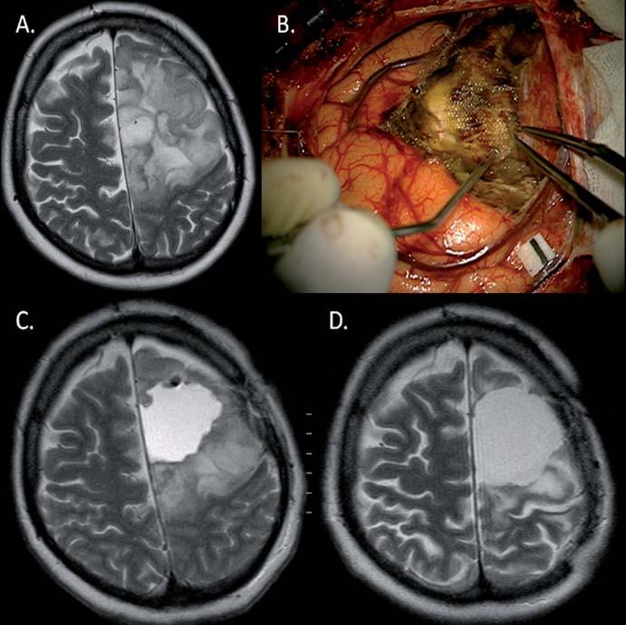 Výrazná regrese (D) (83% v T2) LGG u 45leté pacientky (pacientka 2) po parciální resekci (A, B, C) fibrilárního astrocytomu (reziduum v oblasti precentrálního gyru) za 21 měsíců po kombinované onkologické léčbě. Taktéž došlo k ústupu původně refrakterních epileptických záchvatů.