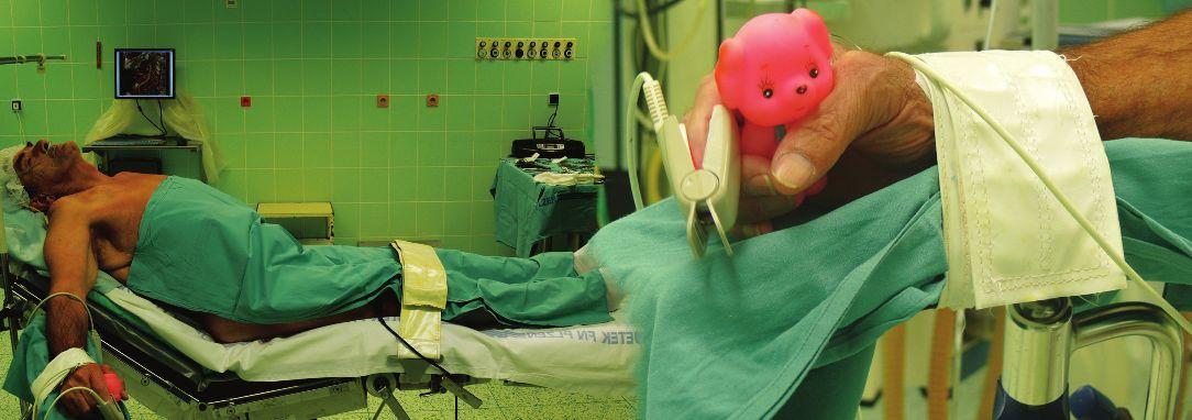 Nemocný připravený k operaci ACI vlevo v lokoregionální anestezii (Detail na nástroj k monitoraci krevního zásobení mozku v pravé ruce.) Fig. 4: Patient is ready for surgery of the left ICA under locoregional anesthesia (Detail of a tool for monitoring blood supply to the brain in the right hand.)