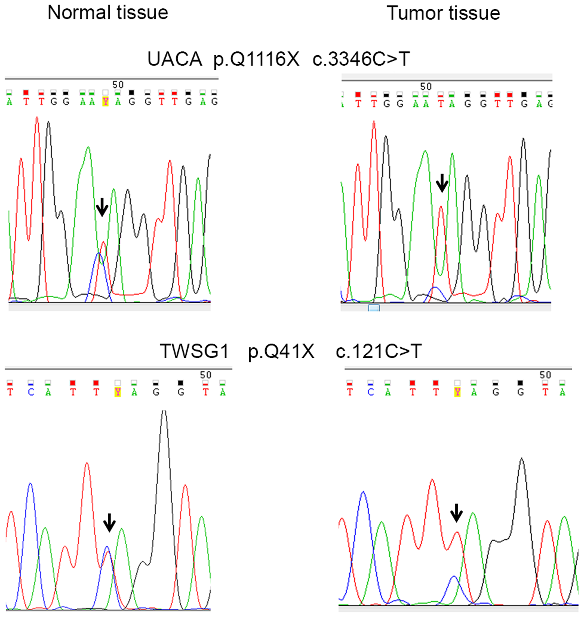 Examples of DNA sequence chromatograms.