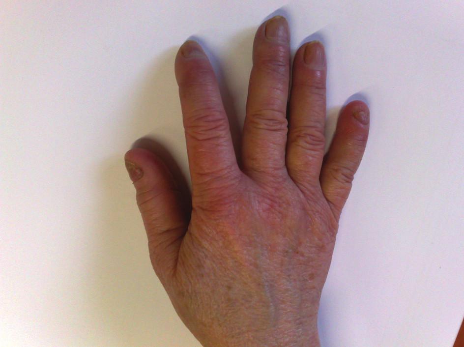 Ruka pacientky s kryoglobulinémií mimo ataku RF – trvající barevné změny a zhoršená kvalita nehtů.