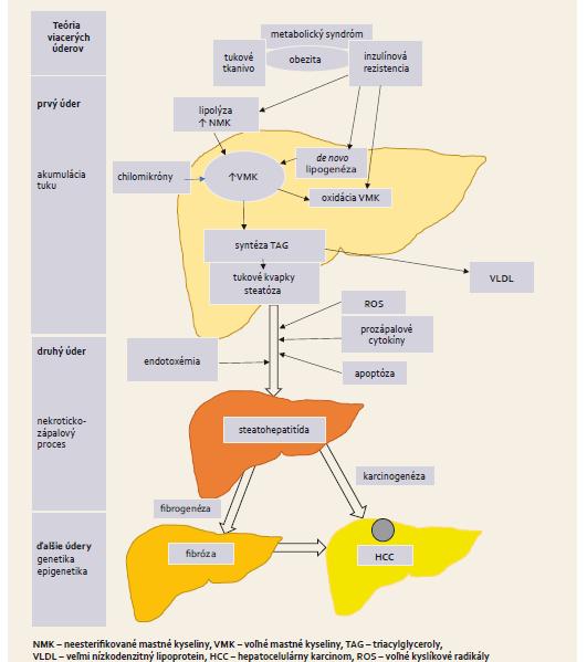 Schéma 1. Základné patofyziologické mechanizmy vzniku NAFLD. Scheme 1. Basic pathophysiological mechanisms of NAFLD.