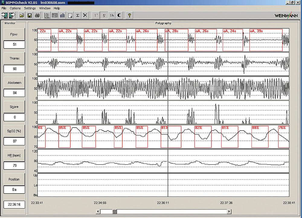 Ukázka 5minutové polygrafie s typickými obstrukčními apnoemi. Pacient 57letý muž, BMI 40,6; hypertenze; AHI 89.