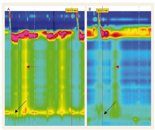 Štandardný 5ml hlt bezprostredne pred podaním NTG s panezofageálnou presurizáciou (vľavo) a 15 min po podaní NTG s výrazne zníženým relaxačným tlakom LES (čierna šípka) aj so znížením tlaku panezofageálnej presurizácie (červená šípka). Fig. 4 Standard 5 ml water swallow right before NTG administration with panesophageal pressurization (left picture) and 15 min after NTG administration with considerably decreased LES relaxation pressure (black arrow) and decreased panesophageal pressurization (red arrow).