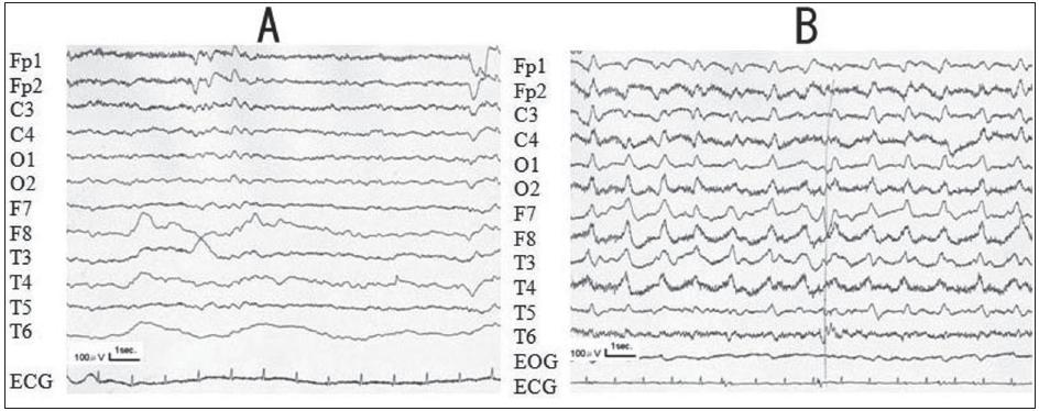 Fig. 3. a) Electroencephalography (September, 2005) shows a small number of slow waves (6–7 Hz) among the normal waves. b) Electroencephalography (November, 2005) shows continuous periodic synchronous discharges (PSD) at 1 Hz.