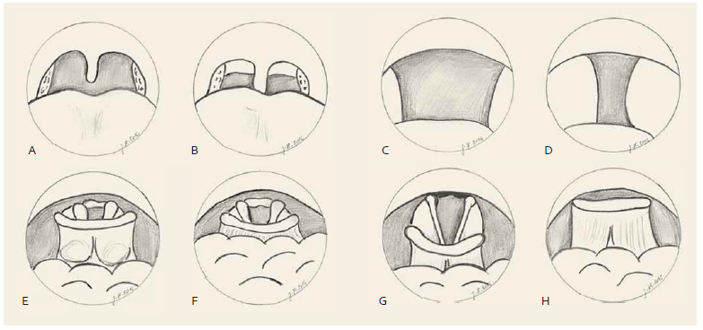 Hodnocení horních cest dýchacích v bdělém stavu. Měkké patro, hodnoceno pohledem enorálně. Normální nález (A), zúžení – webbing zadních patrových oblouků, prodloužená uvula (B). Orofarynx, hodnoceno endoskopicky transnazálně. Normální nález (C), zúžení – zúžení o > 50 % (D). Kořen jazyka, hodnoceno endoskopicky transnazálně. Normální nález – valekuly viditelné (E), zúžení – valekuly překryté kořenem jazyka (F). Hrtan/epiglottis, hodnoceno endoskopicky transnazálně. Normální nález (G), zúžení – epiglottis překrývá vchod hrtanu (H). Velum, transoral view. Normal finding (A), obstruction – webbing of the posterior tonsillar pillars, elongated uvula (B). Fig. 1. Evaluation of the upper airway during wakefulness. Oropharynx, transnasal endoscopy. Normal finding (C), obstruction – obstruction of more than 50% (D). Tongue base, transnasal endoscopy. Normal finding – complete view of valleculas (E), obstruction – valleculas not visible (covered by the tongue base) (F). Larynx/epiglottis, transnasal endoscopy. Normal finding, full view of the vocal cord (G), obstruction – epiglottis covering the vocal cord, glottis opening not seen (H).