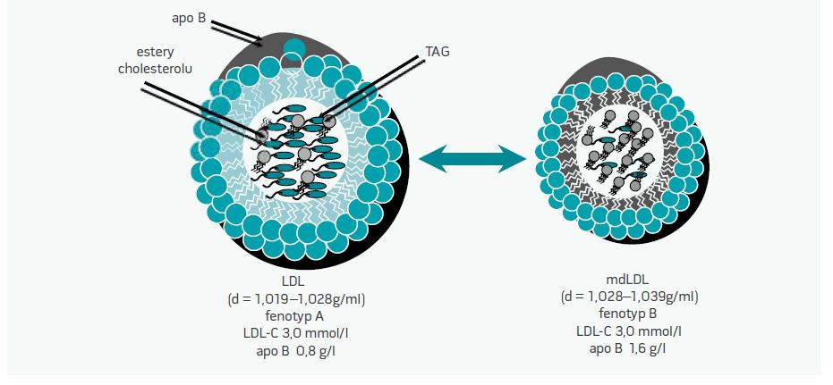 Obr. Vyššie koncentrácie apo B pri rovnakých koncentráciách LDL-C v plazme hovoria o prítomnosti fenotypu B, o prítomnosti mdLDL-častíc