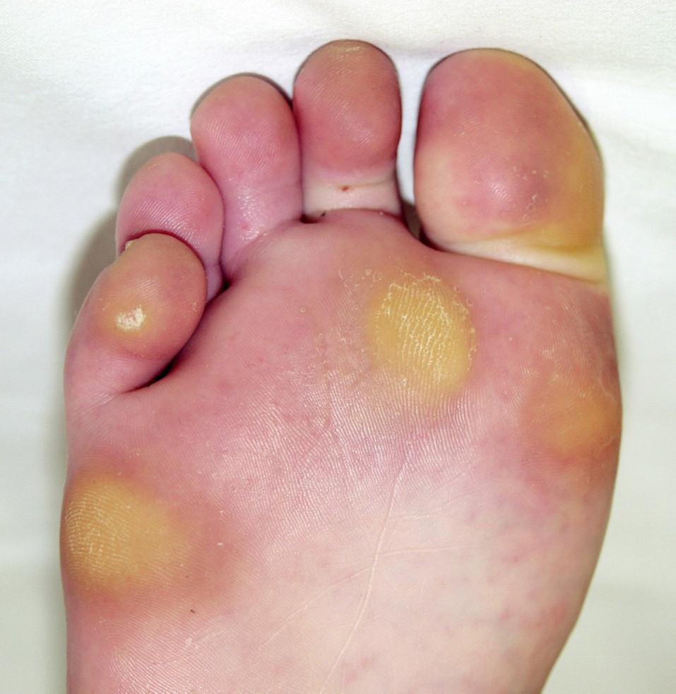 Mozoly na chodidle apalci, vulgární veruka na 5. prstu.