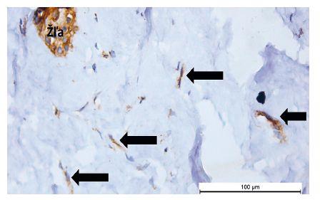 Telocyty (šípky) vo väzive mliečnej žľazy, v ich blízkosti sú žľazové bunky (Žľa) (anti-CD117, vizualizované diaminobenzidínom do hneda, orig. zväčšenie 400x)