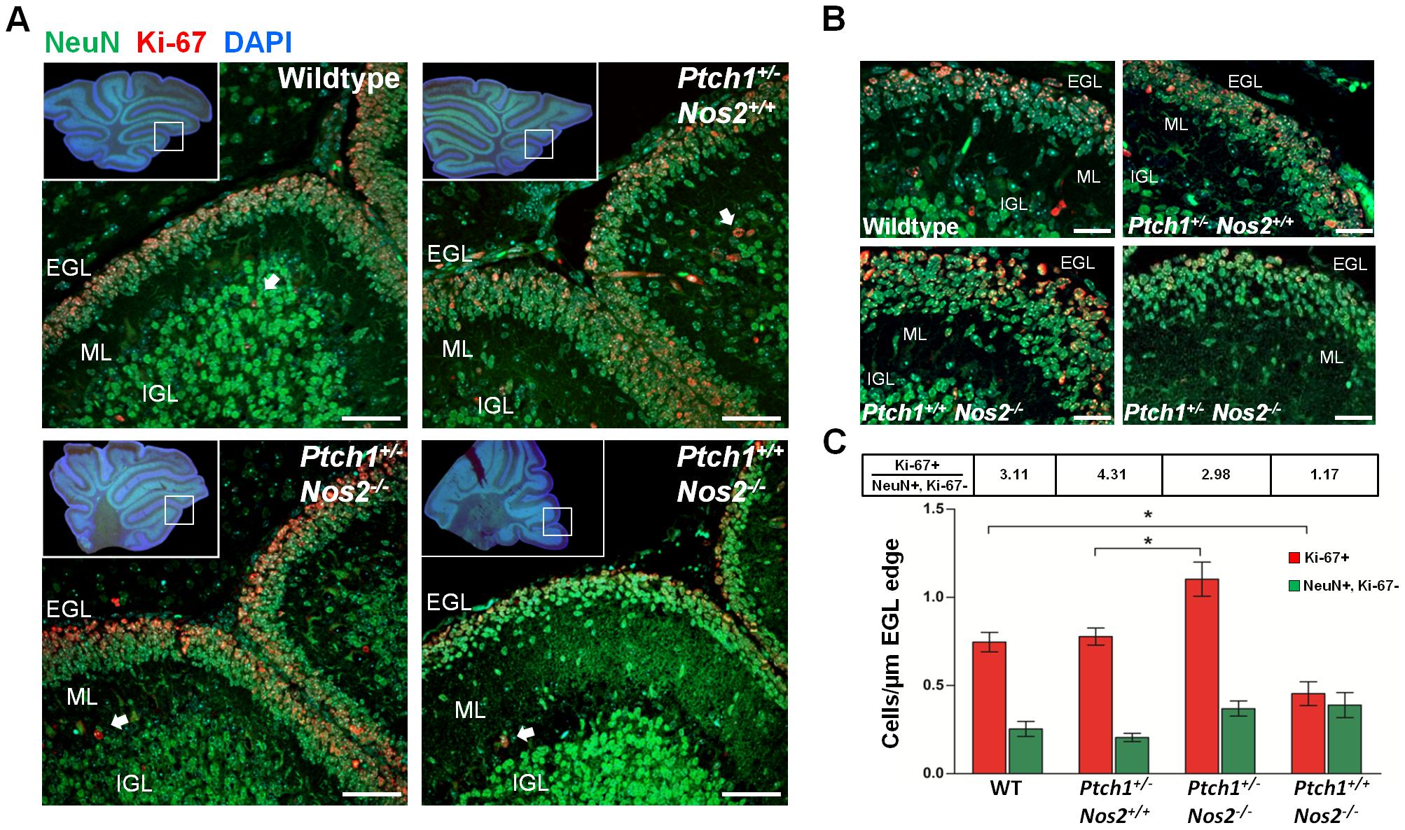 Proliferation and accumulation of GCPs in postnatal cerebellum.