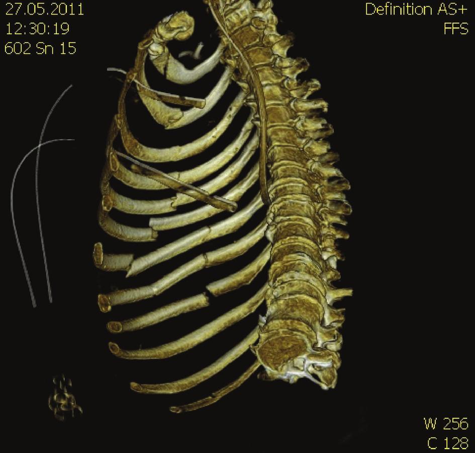 Obr. 1, 2. 3D CT rekonstrukce blokové zlomeniny žeber levé poloviny hrudníku se zobrazením rozsahu dislokace zlomenin Fig. 1, 2. 3D CT reconstruction of the left-sided block rib fracture with depiction of fracture dislocation