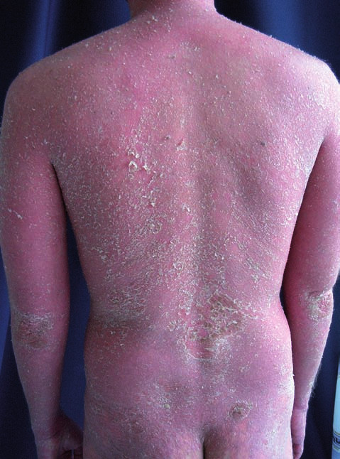 Psoriasis vulgaris generalisata po vysazení cyklosporinu A