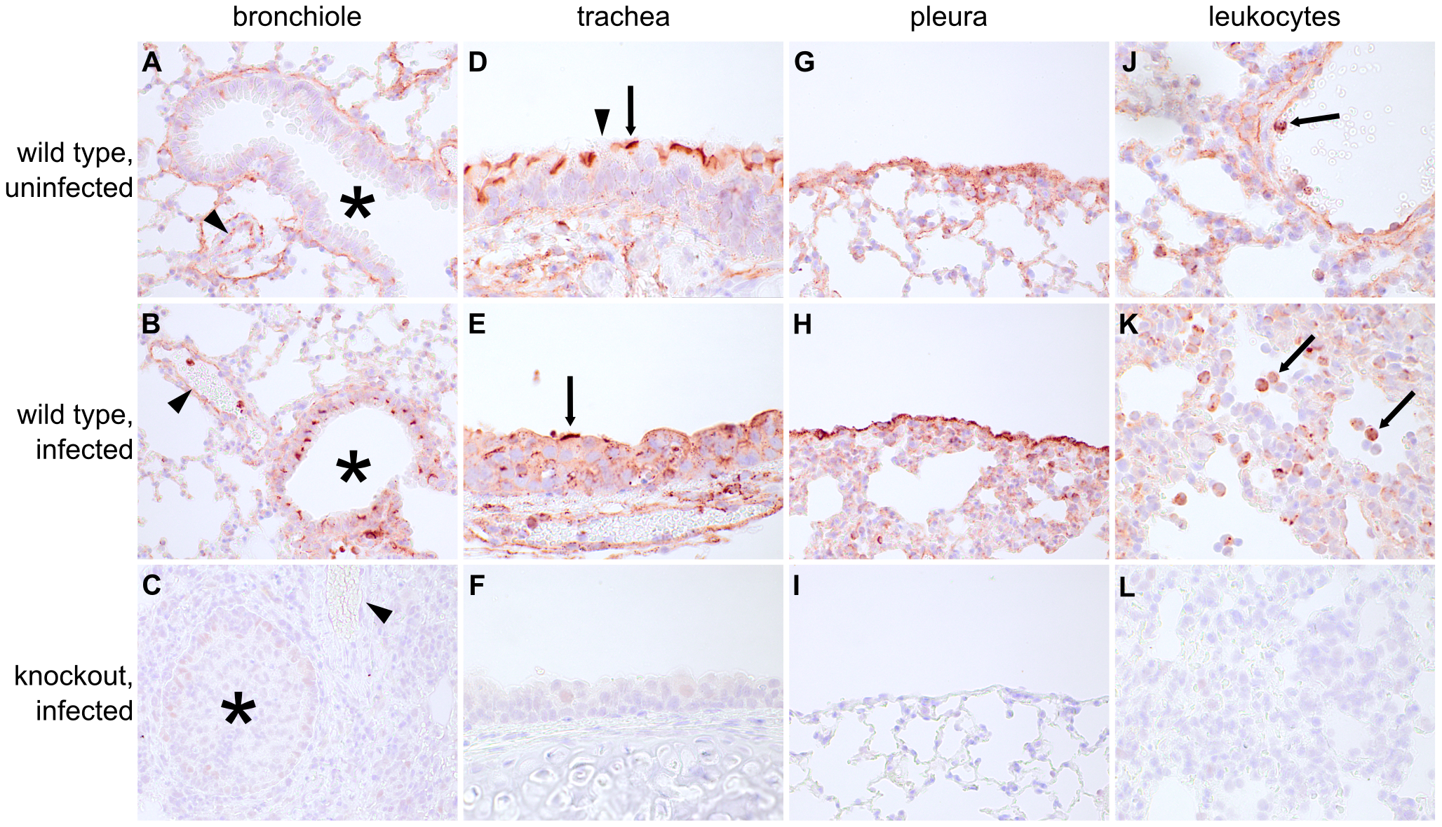 Ifitm3 is constitutively expressed by many respiratory tissues and induced in lower airway epithelium by influenza.
