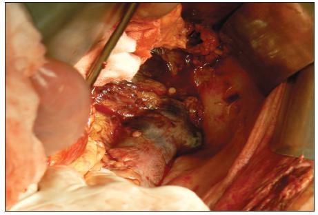 Transmurálna nekróza lienálnej flexúry Fig. 1. Transmural necrosis of lienal flexure