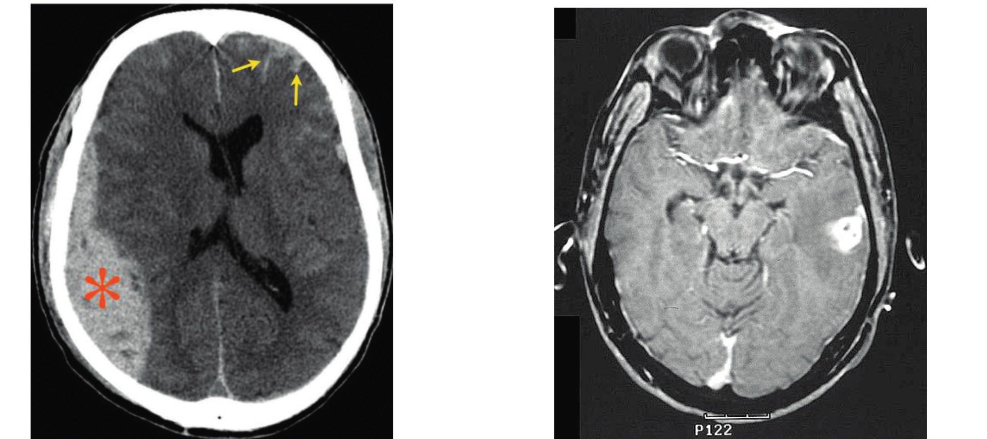 Ilustrační ukázka CT (subdurální hematom*, kontuze→) a MR mozku u traumat