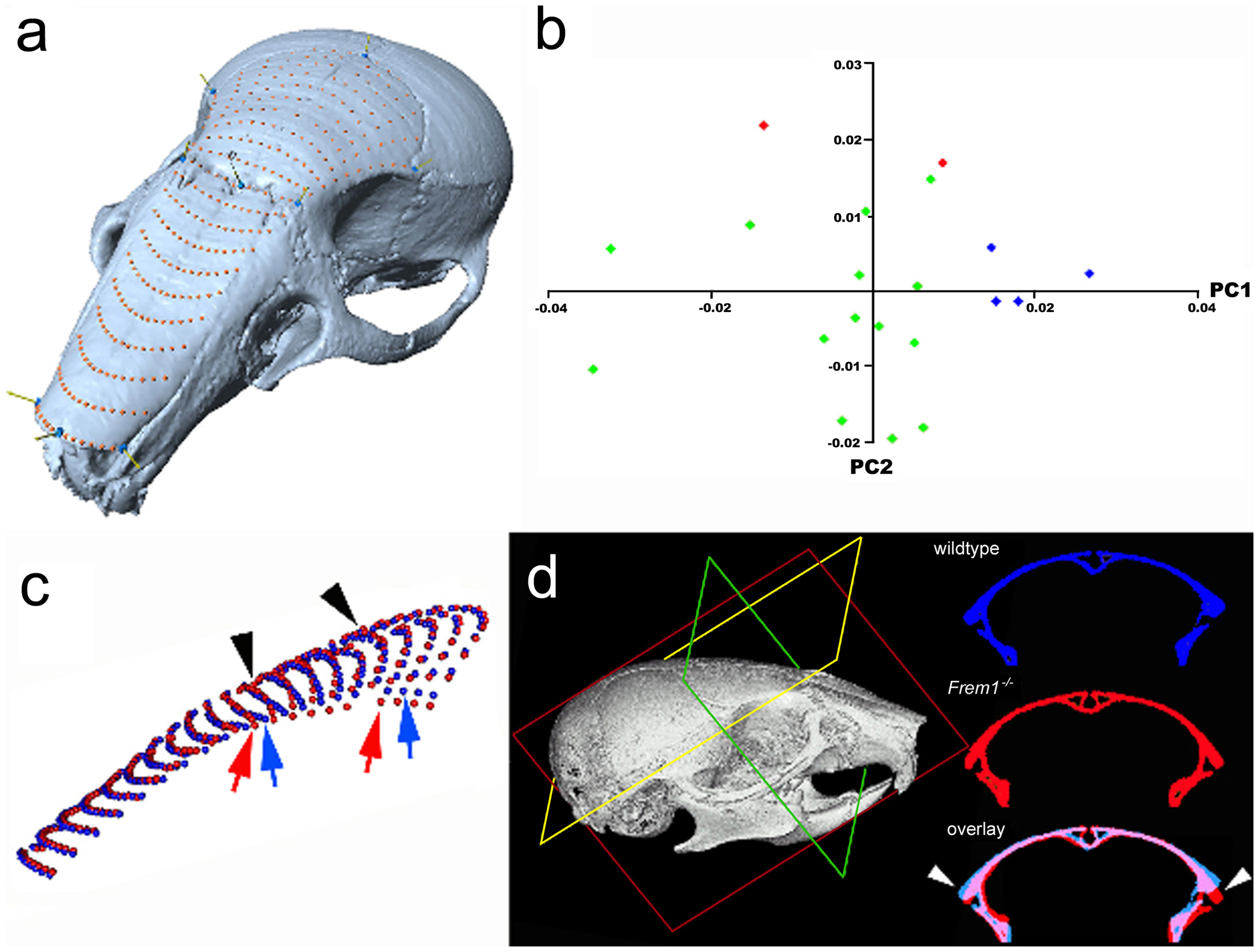Frem1 mCT and morphometric analysis in mice are consistent with the human MC phenotype.