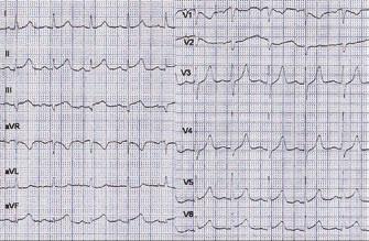 Vstupní EKG – obraz STEMI inferolaterálně.