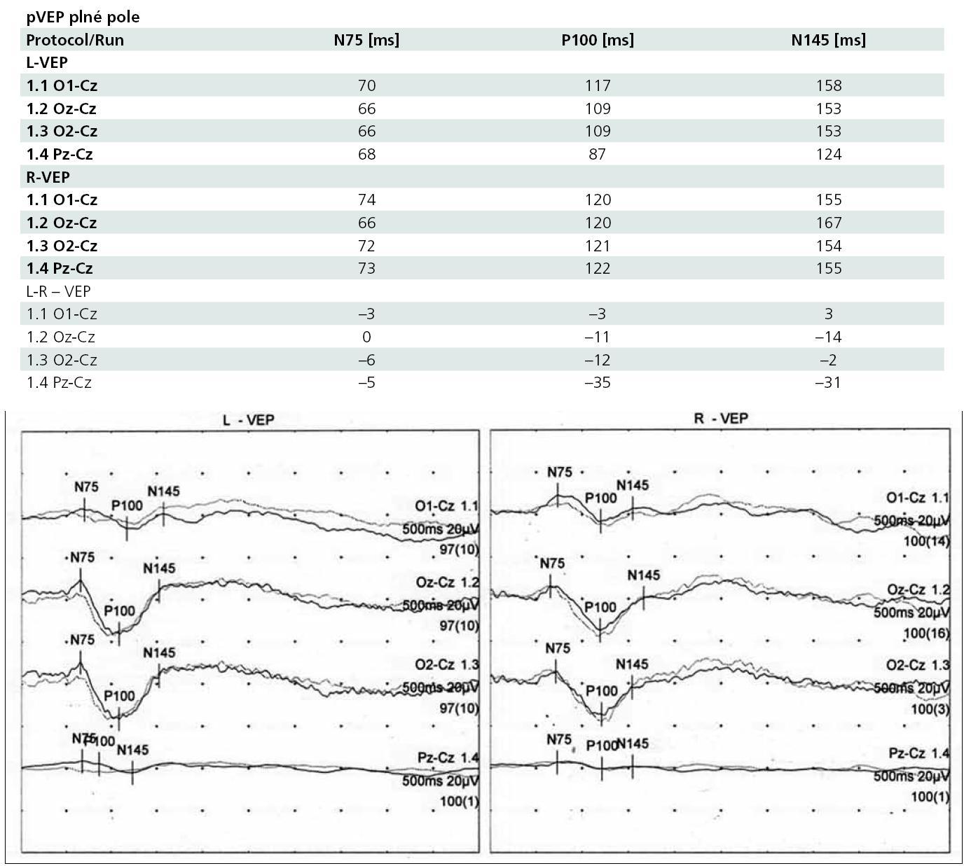 pVEP vyšetření při neuroretinitis u osmileté dívky s lymeskou boreliózou.