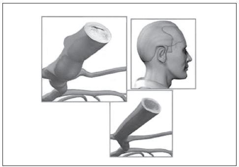 Fyziologický obraz tepny a patologický obraz TA [2].