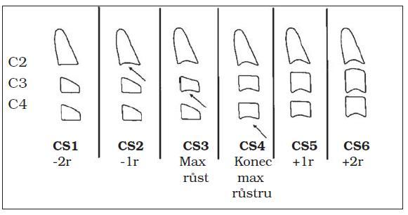 CVM – fáze skeletálního věku podle vývoje obratlů krční páteře podle Baccettiho