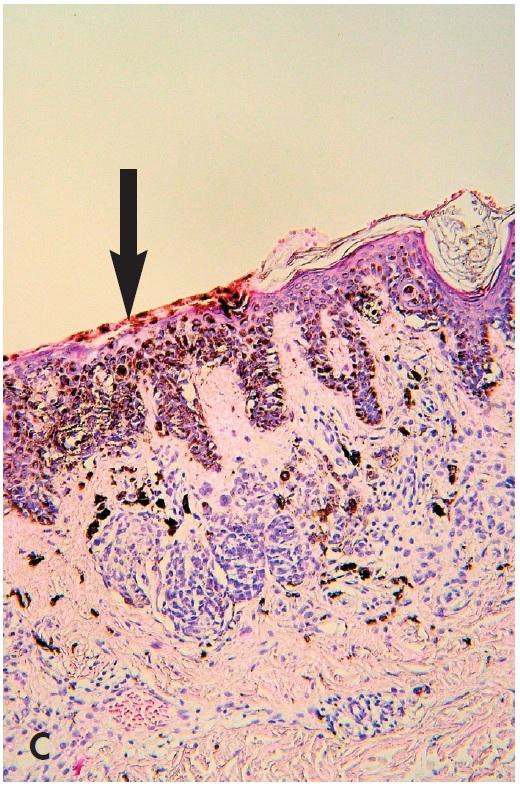 """Obr. 6. """"černá v hnědé"""". Mírně asymetrická pigmentová makula s excentrickou hyperpigmentací (A), která je tvořena dermatoskopicky okrskem akcentované pigmentové sítě až rozvětvenými proužky (B – šipka). Ty mohou korespondovat s horizontální růstovou fází povrchově se šířícího melanomu. Přikrojení bioptické částky musí zachytit tuto kritickou část, současně však ji nevykrájet – je klíčem k diagnóze. V daném případu byla jejím podkladem fokálně zvýšená melaninogeneze s transepidermální eliminací melaninu, nikoliv melanom (C – šipka) (HE, 100x)."""