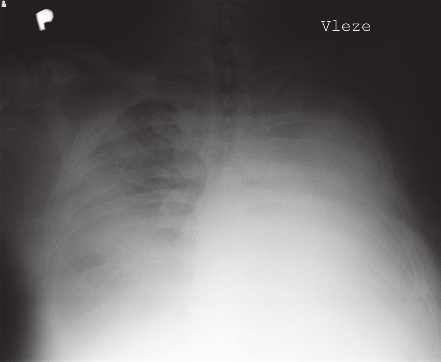 Prostý snímek hrudníku vleže zobrazující zastřený levý hemitorax Fig. 1: Plain chest x-ray in supine position showing a blurred left hemithorax