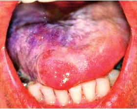 Pseudomembranózna forma orálnej kandidózy na povrchu jazyka. Vrstva kultúr kandíd má tendenciu postupne sa olupovať (Ďurovič)