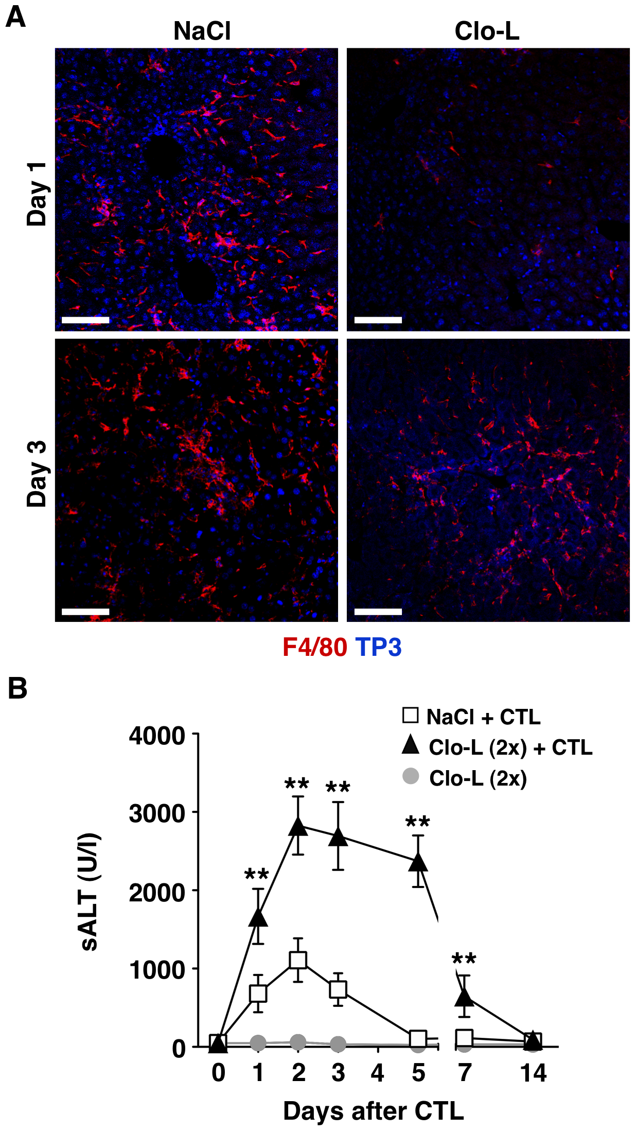 Recruitment of F4/80<sup>+</sup> cells into the inflamed liver and prolongation of disease severity in CTL-injected mice receiving a second Clo-L injection.