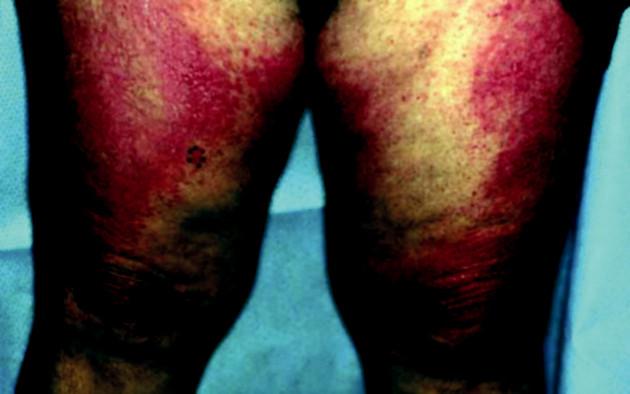 Projevy dermatomyozitidy v oblasti v oblasti stehen a kolenou u 67leté pacientky s karcinomem ovaria