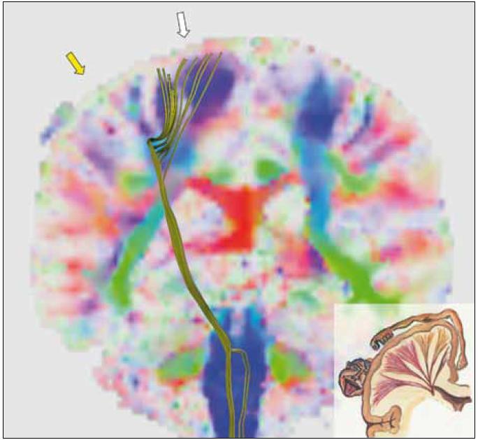 Trojrozměrný obraz kortikospinální dráhy na pozadí obrazu frakční anizotropie v koronárním řezu v úrovni precentrálního gyru. Výpočet frakční anizotropie je prvním krokem při traktografii. Frakční anizotropie vyjadřuje míru uspořádanosti nervových vláken v dané oblasti. Čím sytější je barva v určité oblasti obrázku, tím více nervových vláken procházejících oblastí má stejný směr. Barvy pak kódují, o jaký směr se jedná: modrá barva představuje směr shora-dolů, zelená směr předo-zadní, červená směr pravo-levý. Je patrné, že zobrazená kortikospinální dráha končí v malé oblasti precentrálního gyru – tam, kde je vysoká míra uspořádanosti nervových vláken reprezentovaná sytě modrým zbarvením – viz oblast pod bílou šipkou. Do oblasti pod žlutou šipkou naopak žádná zobrazená vlákna nesměřují, a to i přesto, že patří k primární motorické oblasti (jde přibližně o oblast zodpovědnou za pohyb ruky). Míra uspořádanosti nervových vláken je v oblasti pod žlutou šipkou nízká, což odpovídá nízké frakční anizotropii vyjádřené málo sytými barvami. Rekonstrukční algoritmus traktografie nedokáže zde probíhající vlákna zachytit. Vpravo dole je pro připomenutí schéma reprezentací částí těla na mozkové kůře a také náčrt probíhajících kortikospinálních (a kortikobulbárních) drah. Jedná se o vyšetření stále téhož pacienta jako v předchozích obrázcích, na průběhu kortikospinální dráhy je patrná defigurace daná přítomností tumoru.