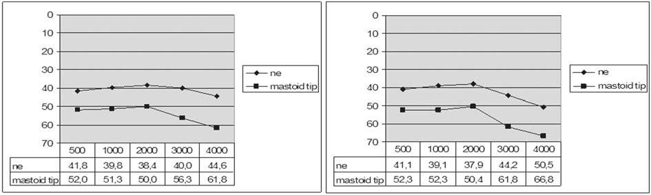 Graf 6a. Vzdušné vedení před a po operaci podle resekce mastoidního hrotu.
