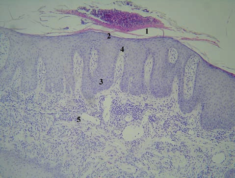 Histologický obraz rozvinutej lézie psoriaziformnej erupcie u pacienta liečeného infliximabom z indikácie hidradenitis suppurativa (HE, 200 x) 1 – parakeratóza masívne infiltrovaná imigrovanými neutrofilmi: veľký Munroov mikroabsces, 2 – hypogranulóza s fokálnou agranulózou, 3 – prstovitá (psoriaziformná) akantóza, 4 – papilomatóza s dilatovanou kapilárou a lymfocytovým infiltrátom, 5 – dilatované kapiláry a neobvykle hlboko penetrujúce lymfohistiocytové infiltráty s prímesou eozinofilov