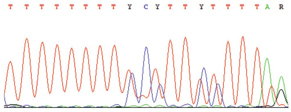 Sekvenogram – příklad tzv. sklouzávání polymerázy v místě polymononukleotidových úseků (zde poly-T), které vede ke vniku jednobázové deleci.