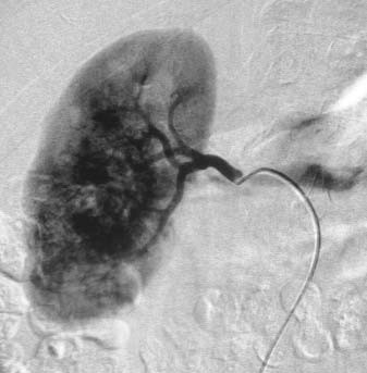 Angiografie pravé renální tepny s patrnou typickou chaotickou maligní vaskularizací Grawitzova tumoru.